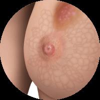 maintrac badanie nowotwór piersi