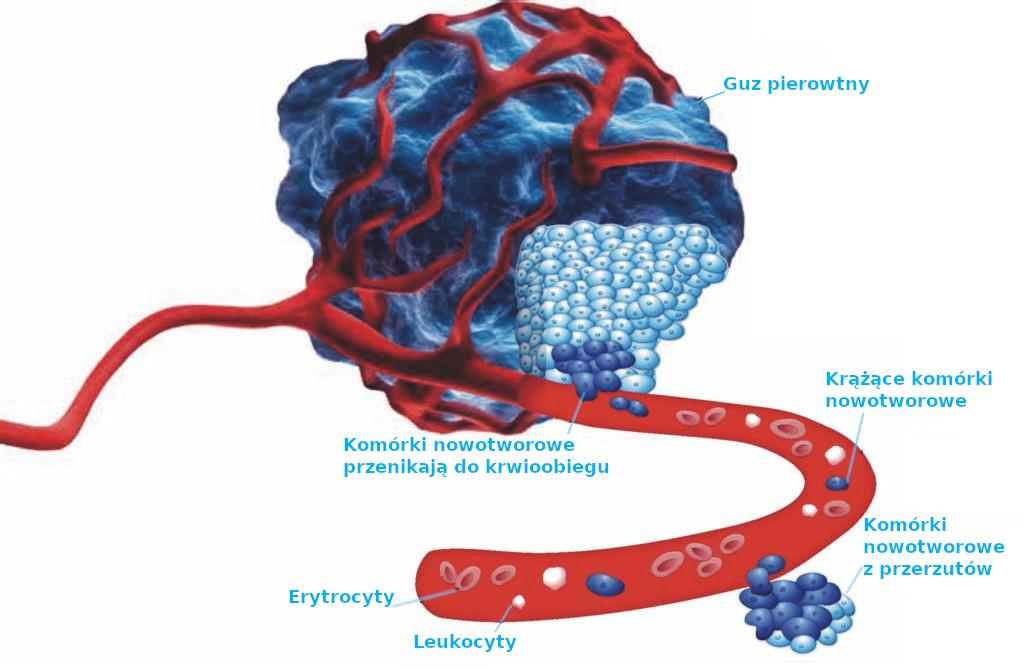 monitorowanie nowotworu leczenie maintrac
