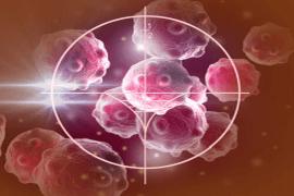 onkologia maintrac badanie przerzuty